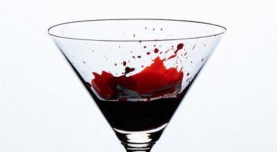 10项最为奇怪的医学研究:精液注射皮肤 喝自己的血